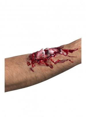 Broken Bone Scar And Glue